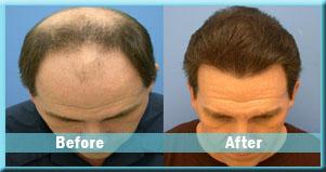 Get Hair Transplant Surgery at Low Cost